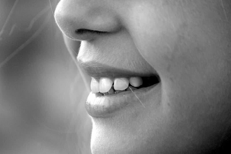 lentes de contato dentárias